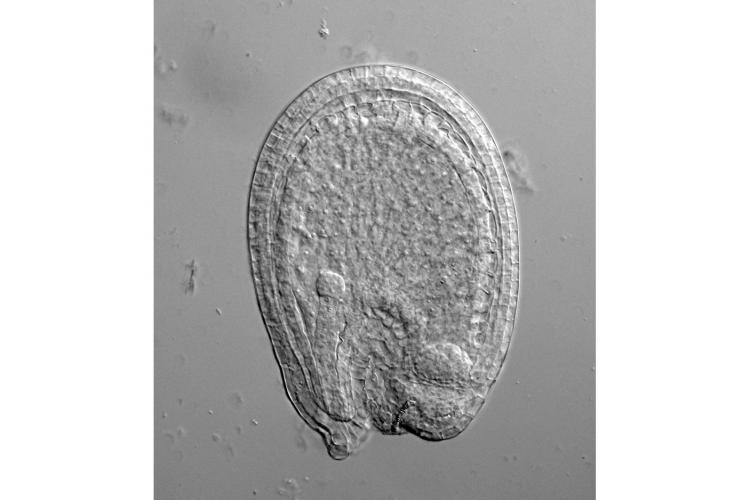 A tiny, spherical embryo, on the left side of the image, grows inside the endosperm of a young Arabidopsis seed. Photo by Mohammad Foteh Ali, graduate student in Kawashima's lab.