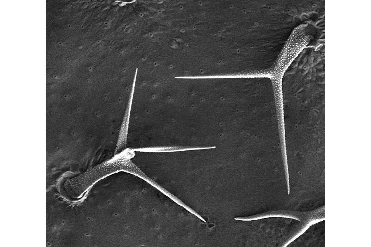 This image shows the surface of the leaf cuticle that harbors salicylic acid. Photo courtesy of Pradeep Kachroo, UK plant pathologist.